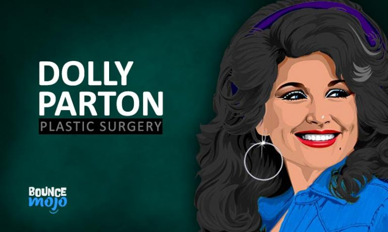 Dolly Parton Plastic Surgery List [Before & After Photos]
