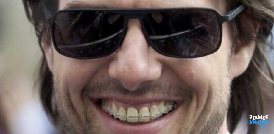 Tom Cruise Teeth 05